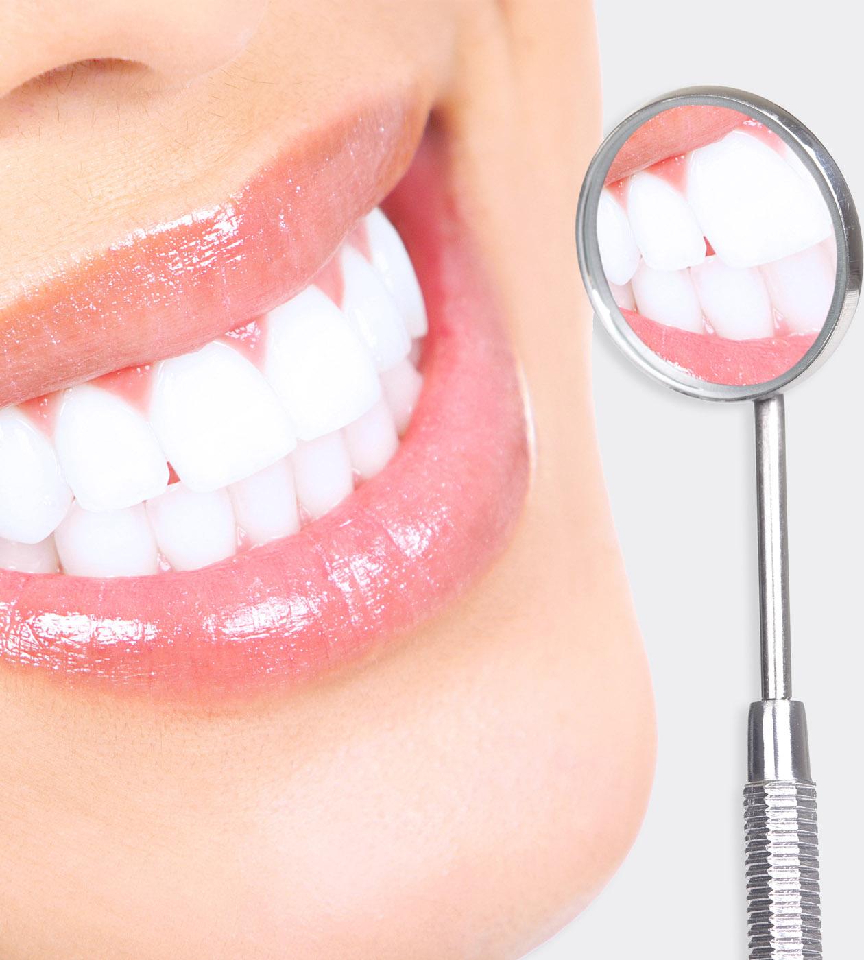 SPA избелване на зъбите