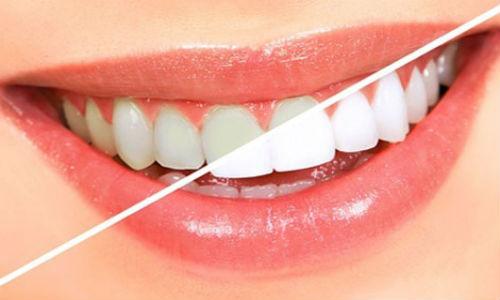 СПА избелване на зъби