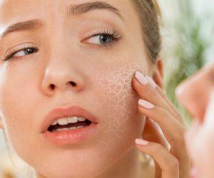 5 съвета за суха кожа